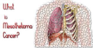 free-mesothelioma